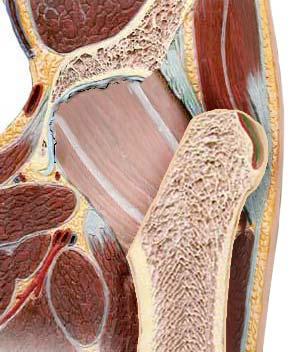 Резекционная артропластика бедра